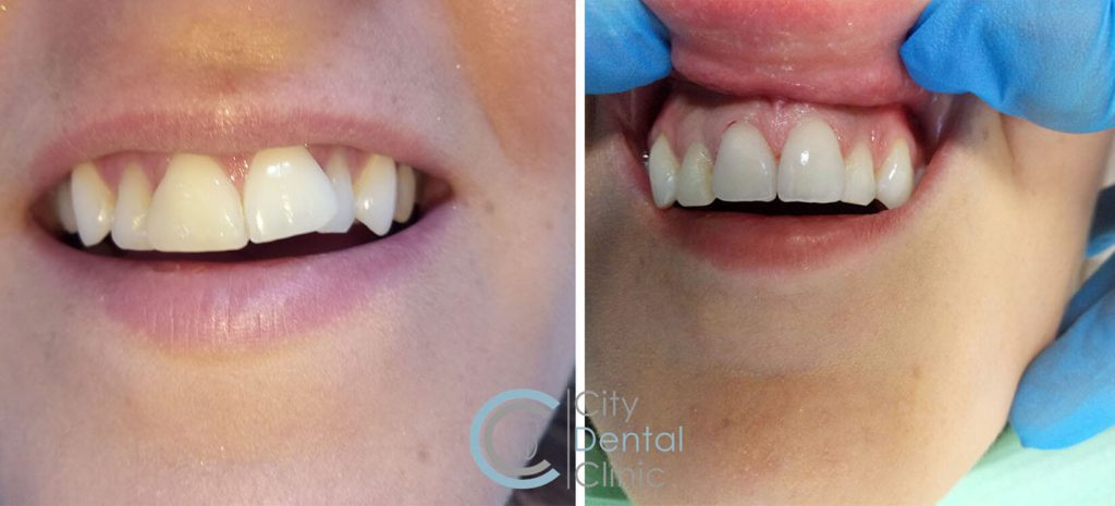 zubné fazety v city dental clinic pred a po
