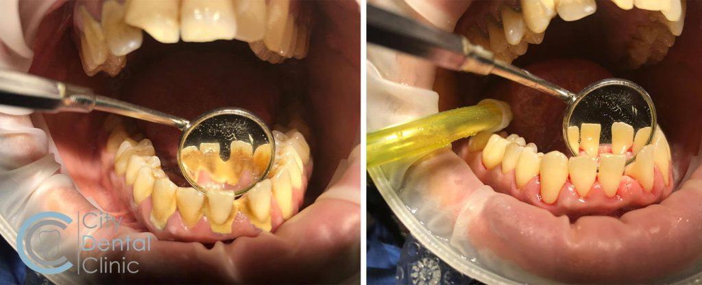 dentálna hygiena v city dental clinic pred a po