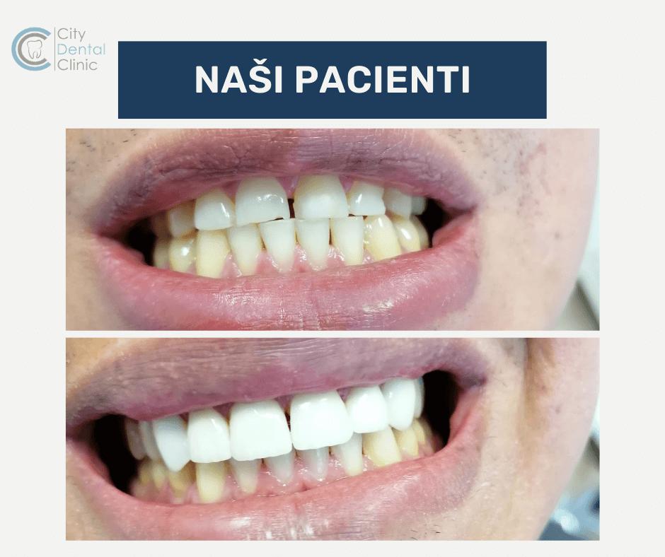 pred a po fotky nasich pacientov